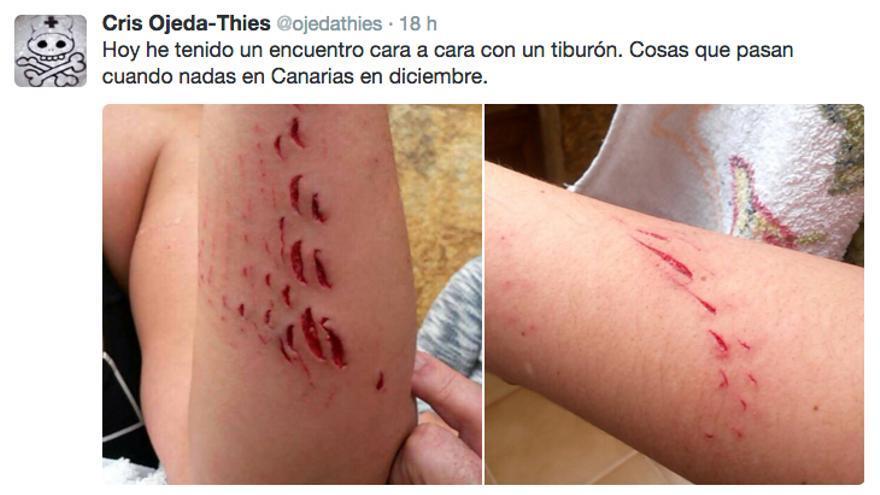 Cristina Ojeda muestra las heridas que le dejó el tiburón en su página de la red social Twitter.