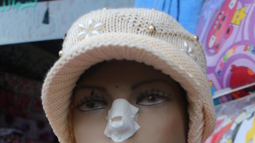 Incluso el maniquí lleva tirita en el bazar, invitando a la cirugía estética./ Enric Lloveras