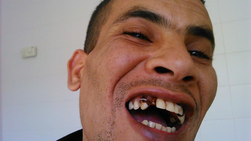 Sabbar muestra los efectos en su dentadura de los golpes supuestamente recibidos