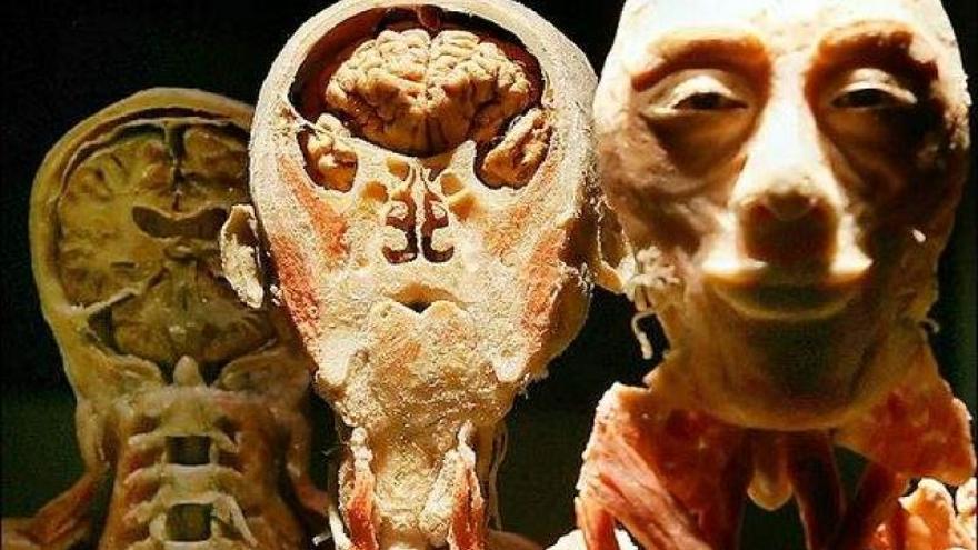 Bodies, cuerpos plastinados y no enterrados en Praga