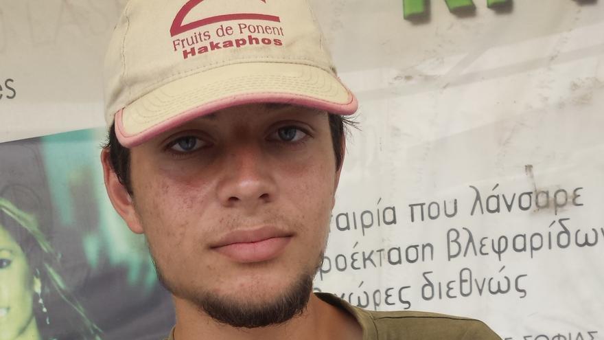 Akram muestra algunas de las heridas de sus brazos. | Beatriz Rivera