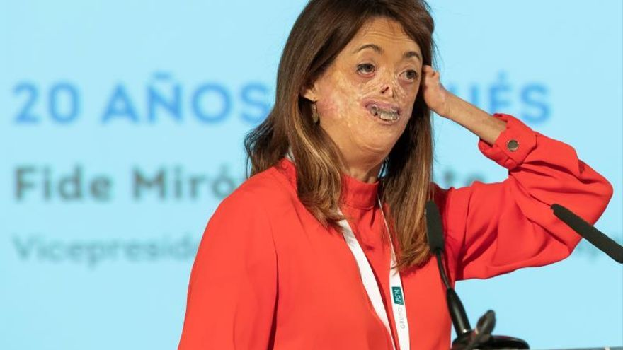 Fidela Mirón, vicepresidenta de la Federación Española de Enfermedades Raras, afectada de porfiria eritropoyética.