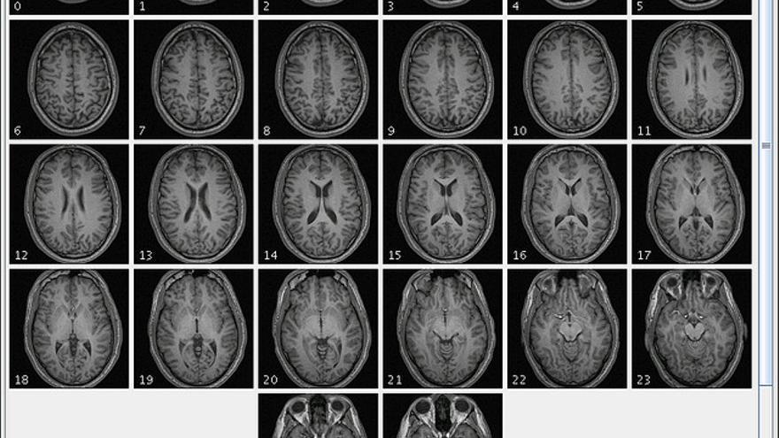 El cerebro de los sospechosos podría convertirse en una inmejorable fuente de información