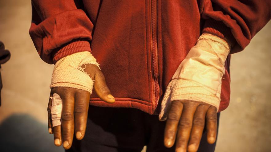 Daoudá muestra sus vendajes después de que uno de sus brazos sufriese un grave desgarro provocado por las cuchillas de la valla de Melilla/Jesús Blasco de Avellaneda