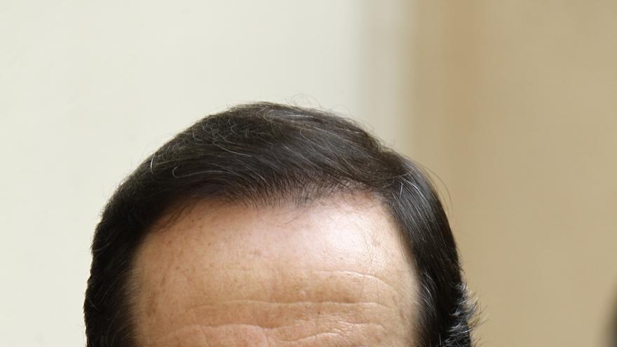 """Bono tacha de """"anécdota"""" el caso de Errejón y dice que ni Pujol ni los de los sobres de Bárcenas han devuelto un céntimo"""