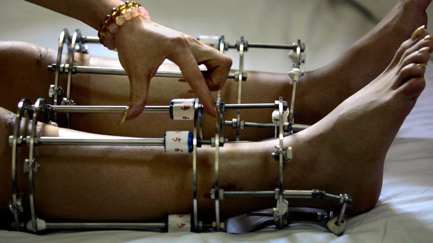 Una paciente con unas prótesis tras haberse sometido a una operación de extensión de extremidades.