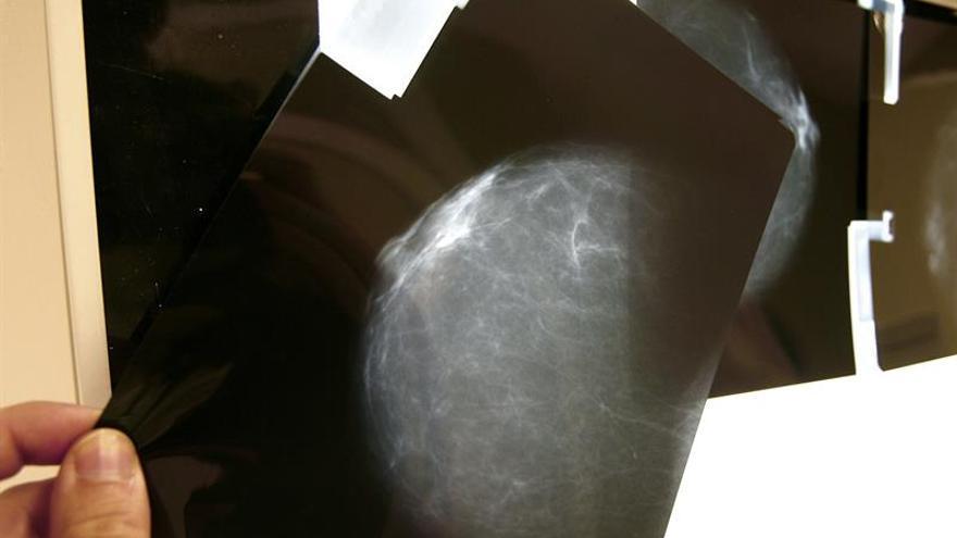 Los 40% de tumores de mama se puede tratar antes de operar para salvar el pecho