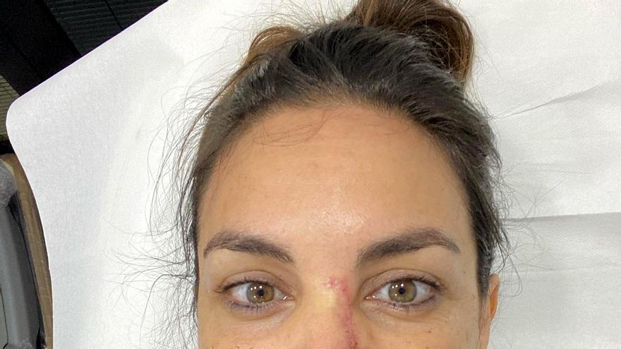 Cicatriz del rostro de Mónica Carrillo al comenzar la recuperación tras la operación