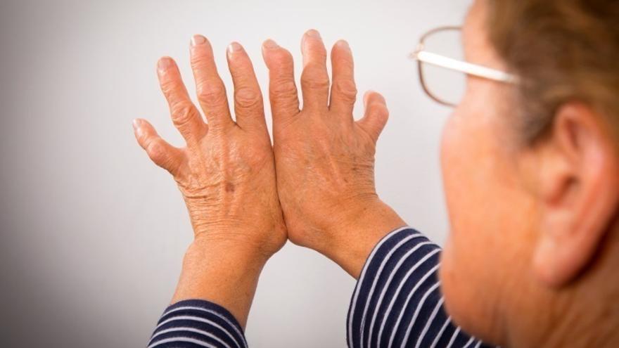 Expertos en artritis recuerdan en Bilbao la importancia de un tratamiento multidisciplinar