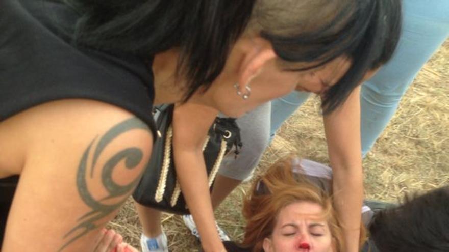 Una activista herida por el impacto de piedras arrojadas por algunos participantes./ Ruth Toledano.