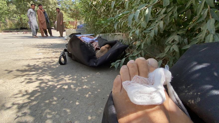 Interpol insiste en su acción contra el EI tras el atentado de Kabul
