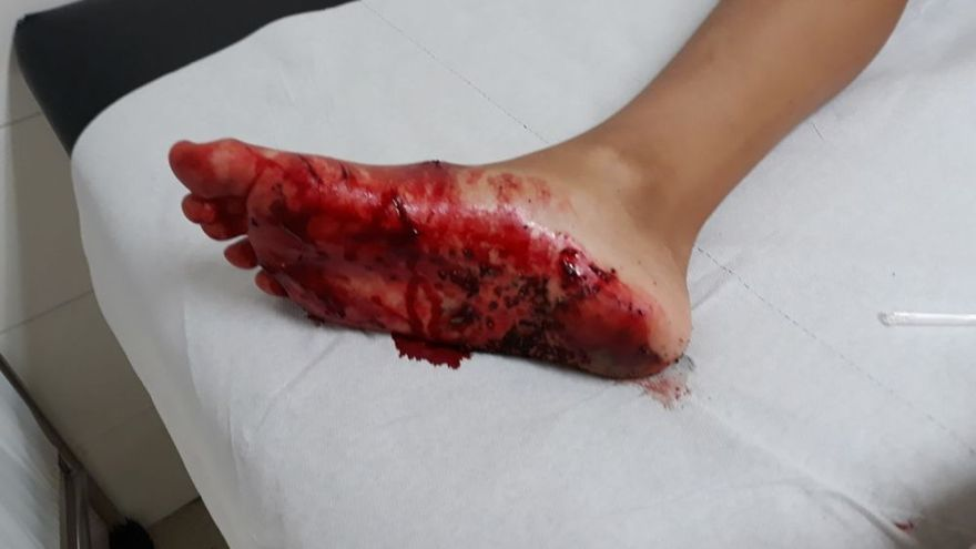 Heridas por la mordedura de un marrajo a un niño en La Aldea