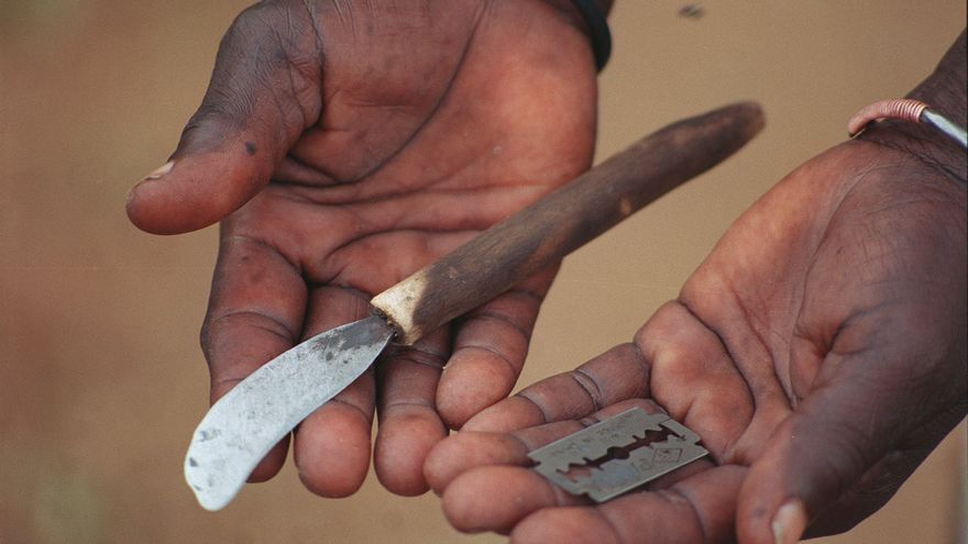 Las cuchillas con las que se practica la ablación/ Imagen cedida por World Vision