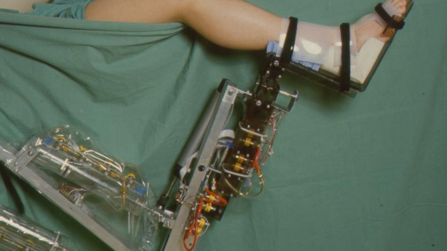 El Arthrobot era un brazo que con las órdenes del cirujano movía la pierna del paciente (Imagen: Cedida por Brian Day)