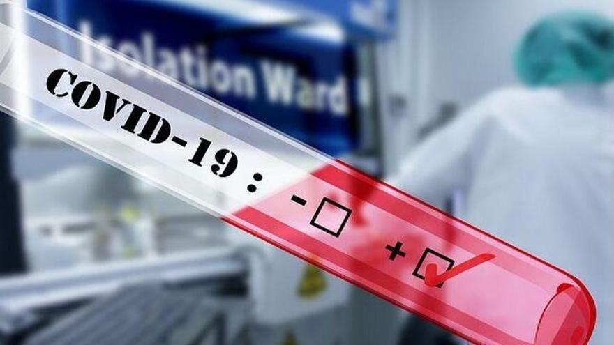 Test para detectar anticuerpos de COVID-19.