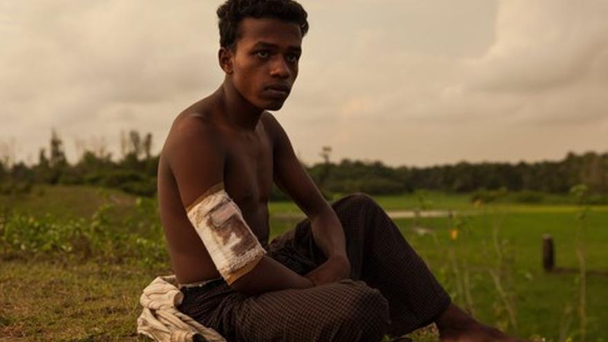 Mohammed intentaba escapar cuando le dispararon en la pierna