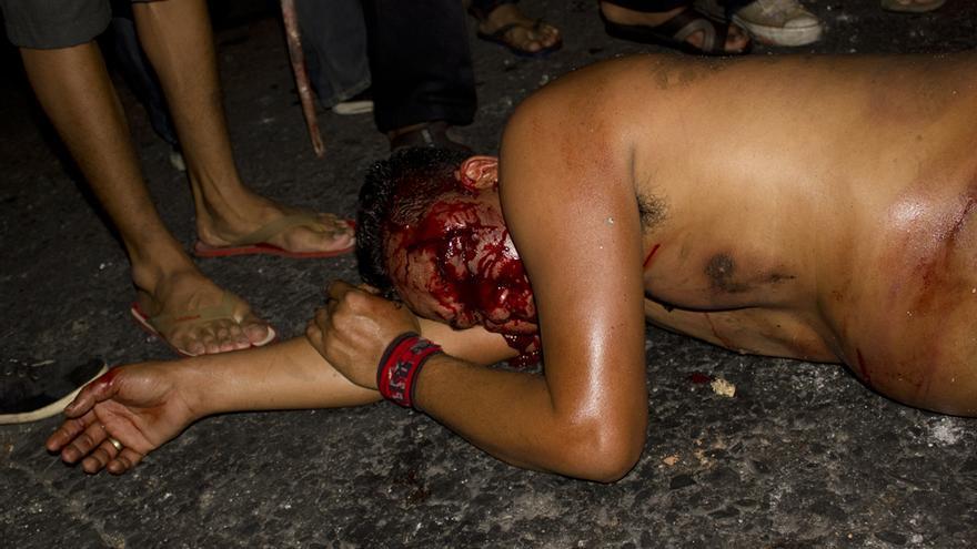 Un camisa roja yace gravemente herido en el suelo rodeado de estudiantes anti-gubernamentales durante un batalla callejera entre ambos grupos en Bangkok, 30 de noviembre de 2013. © Carlos Sardiña Galache.