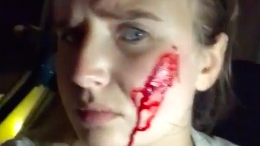 La activista sufrió cortes de cristal en la cara que, denuncia, fueron producidos por disparos tras la acción animalista en una granja de conejos en Gurb (Barcelona)