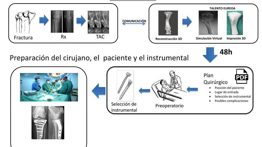 3D hospital Cáceres huesos