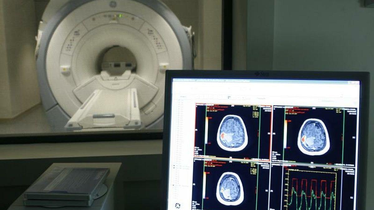 Imágenes de un estudio hecho a un cerebro con Alzheimer.