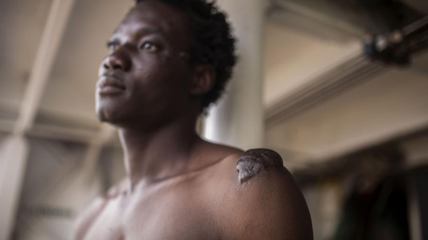 Tagnabou Elvis, rescatado por el Open Arms, relata las torturas sufridas en Libia.