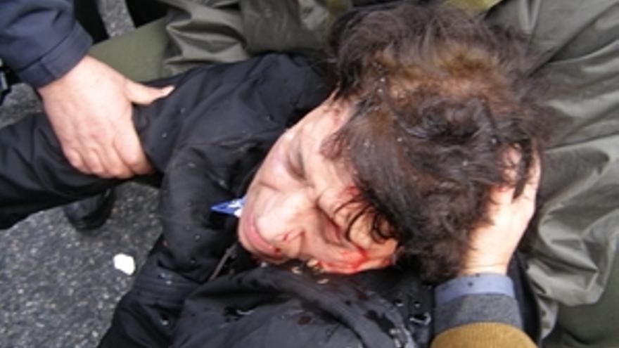 Aggeliki Koutsoumpou, herido de gravedad durante una manifestación en Atenas en diciembre de 2009. © Theodore Koutsoumpos