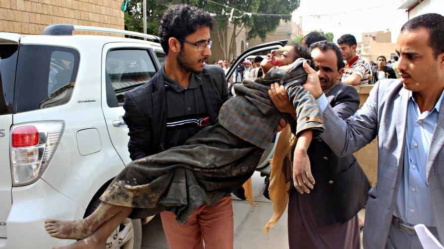 Niño herido en un bombardeo de Arabia Saudí contra un autobús de civiles en Yemen el pasado mes de agosto. Murieron al menos 29 menores.