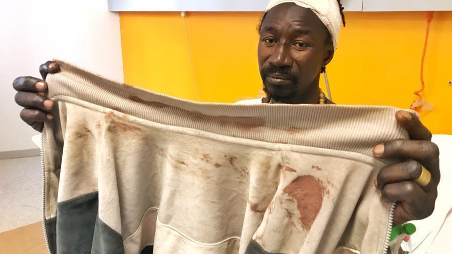 Arona Diakhate, herido por un porrazo de la Policía en los disturbios de Lavapiés (Juan Luis Sánchez)