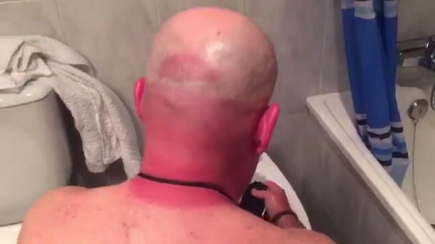 La cabeza de Alfredo Duro quemada por el sol camino a Cardiff