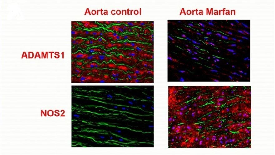 Investigadores de UC e IDIVAL participan en desarrollo de nuevo tratamiento para el síndrome de Marfan