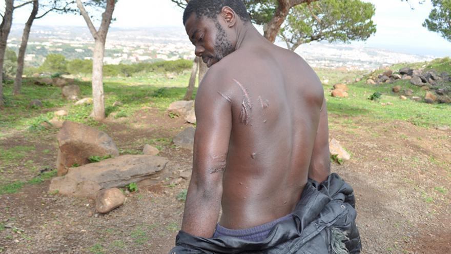 Pascal muestra algunas de las cicatrices que le dejó la concertina de púas. Foto: Jesús Blasco de Avellaneda
