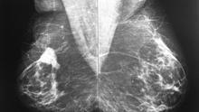 Imagen de una mamografía (Archivo Wikicommons)