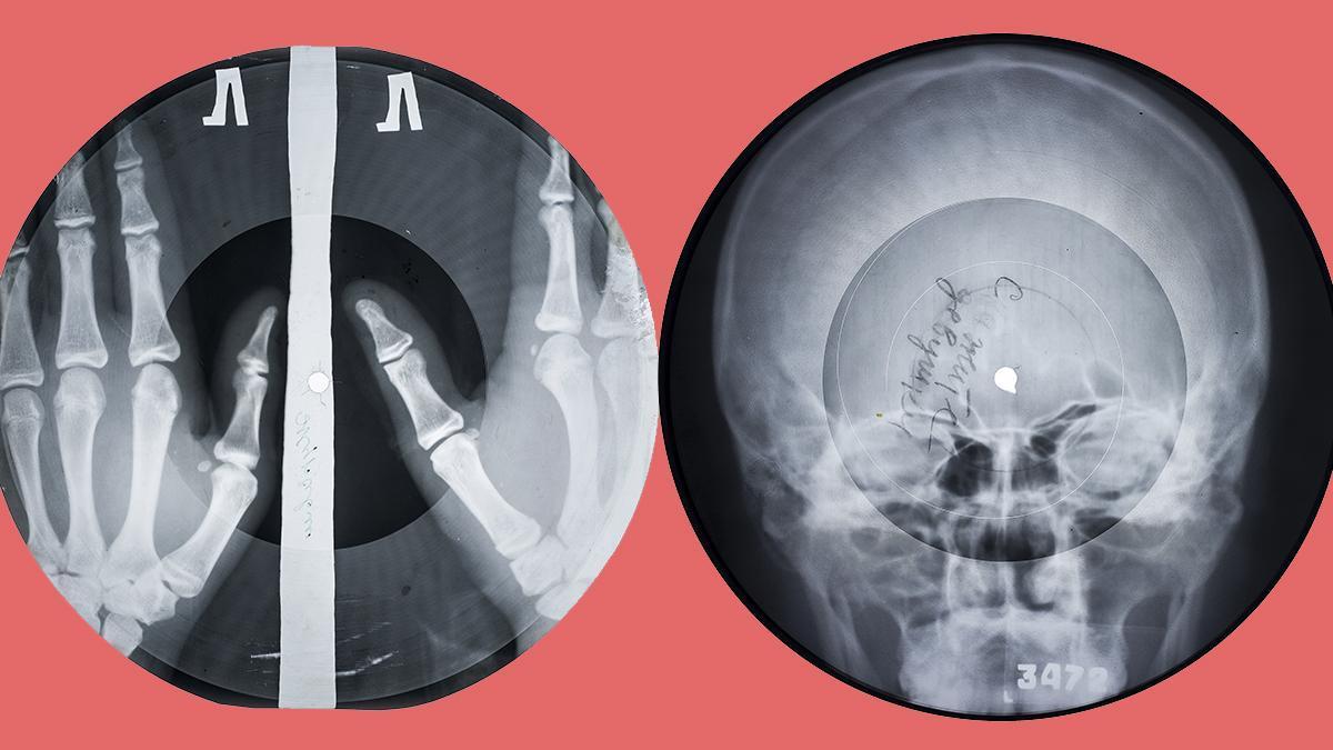 Dos discos de vinilo fabricados con radiografías