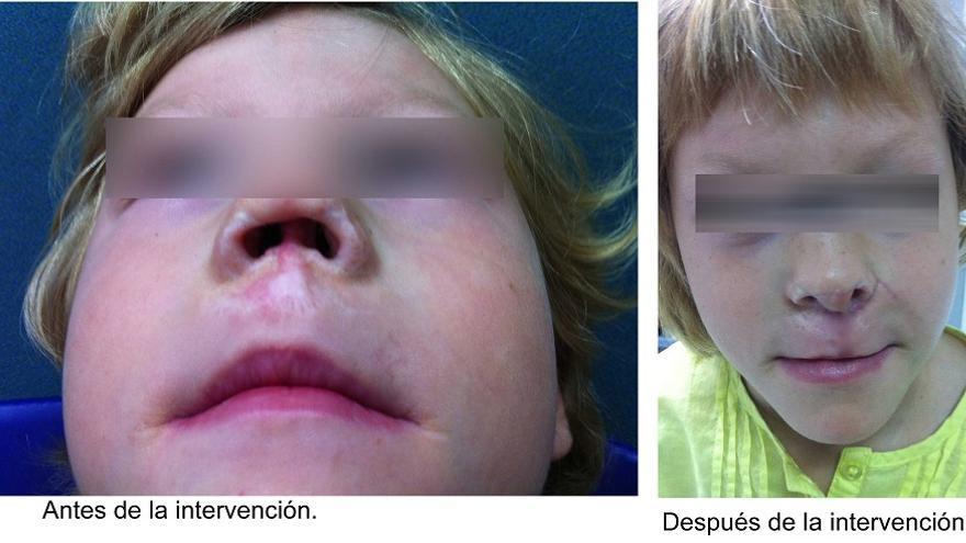 Imagen del estado previo de la niña y el resultado de la operación (foto: Hospital de la Ribera)