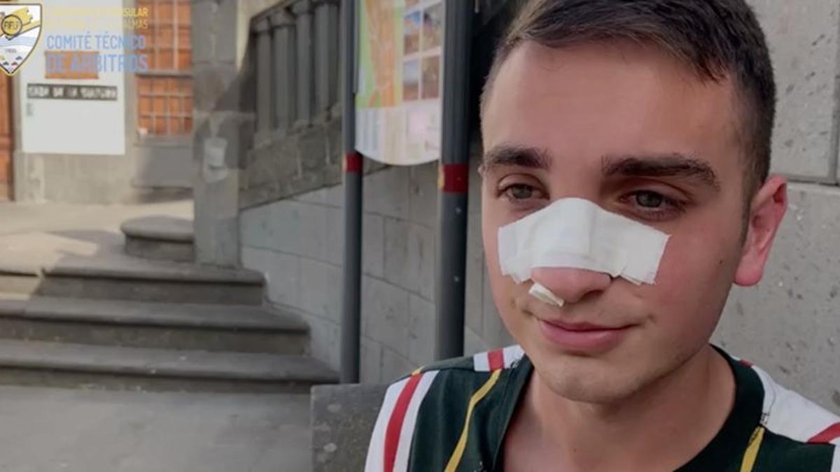 Alejandro Yadriel Moreno Robaina, tras la agresión