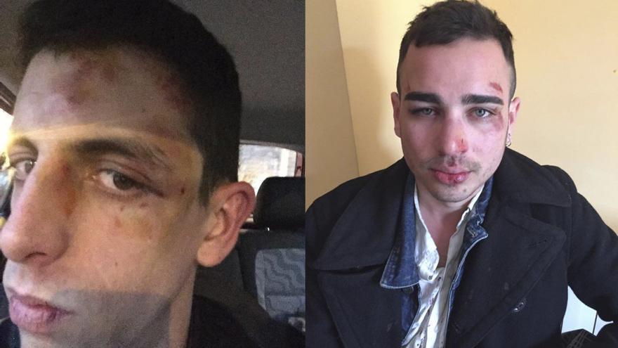 Los dos jóvenes denunciaron su agresión a los Mossos y en las redes sociales