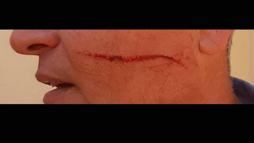 Foto del miembro de Vox Jaén agredido por un compañero de partido./Foto Cadena Ser Jaén