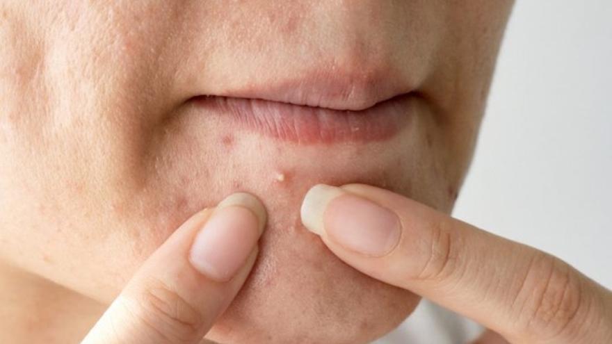 ¿Se pueden eliminar las marcas del acné?