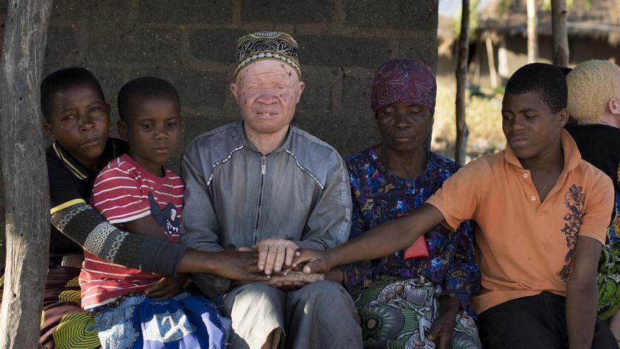 Brighton Rashid Wende Wende, albino de Malawi, junto con otros niños de su comunidad | FOTO: Amnistía Internacional