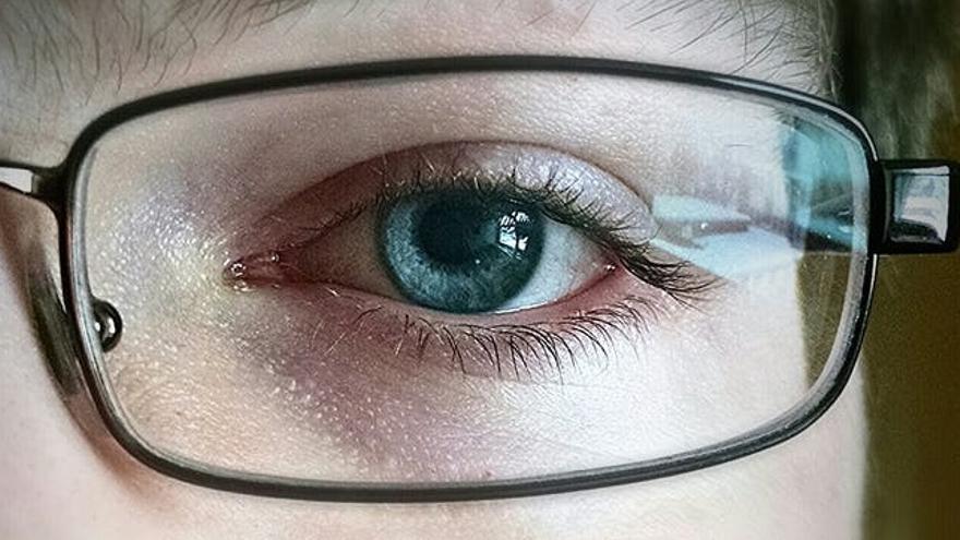 a78cea3eda259 Operarse la miopía con láser  ¿qué riesgos comporta