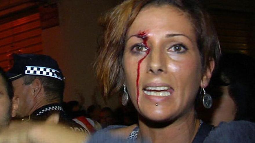 Una de las manifestantes que resultó agredida / cuatro.com