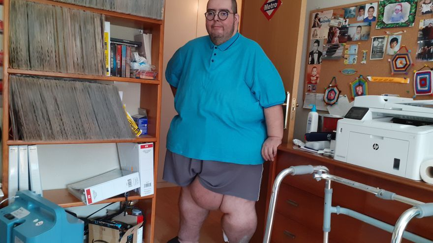 The struggle of a morbidly obese patient to achieve a weight-bearing embulance