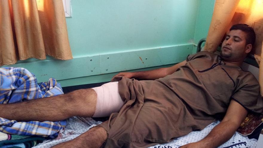 Rayab Maíruf (22 años), agricultor. Fue disparado en la pierna mientras trabajaba en su campo. Foto: Isabel Pérez