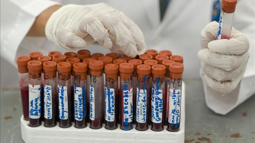 Científicos descubren cómo el VIH infecta las células