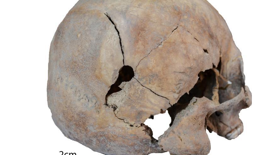 Cráneo con un tiro hallado en el pozo de Tenoya