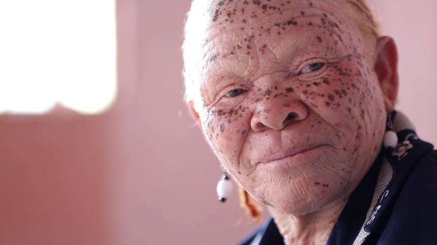 Fotograma del documental Black Man White Skin. Febronia, una de las muejres albinas entrevistadas.