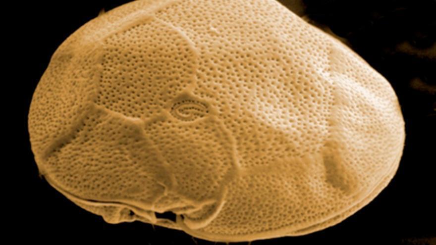 Gambierdiscus excentricus.