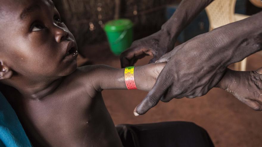 En el último año, casi 2.800 niños con desnutrición severa han recibido tratamiento en el programa de nutrición y 3.000 pacientes han sido ingresados en el hospital, las dos terceras partes niños menores de cinco años. Evaluación nutricional rápida a partir de prueba Muac a un niño en el campo de Yida. Fotografía: Yann Libessart/MSF