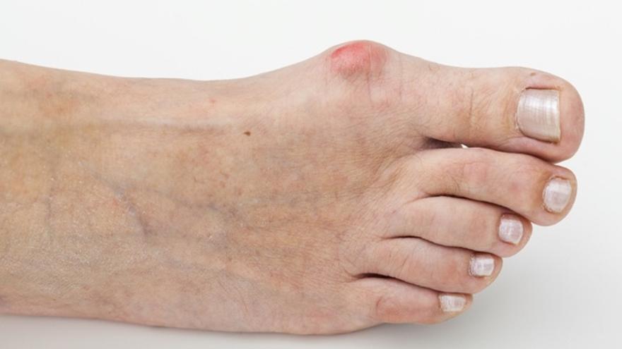 Los juanetes se forman por el tipo de pie y por tanto de pisada que tenemos.