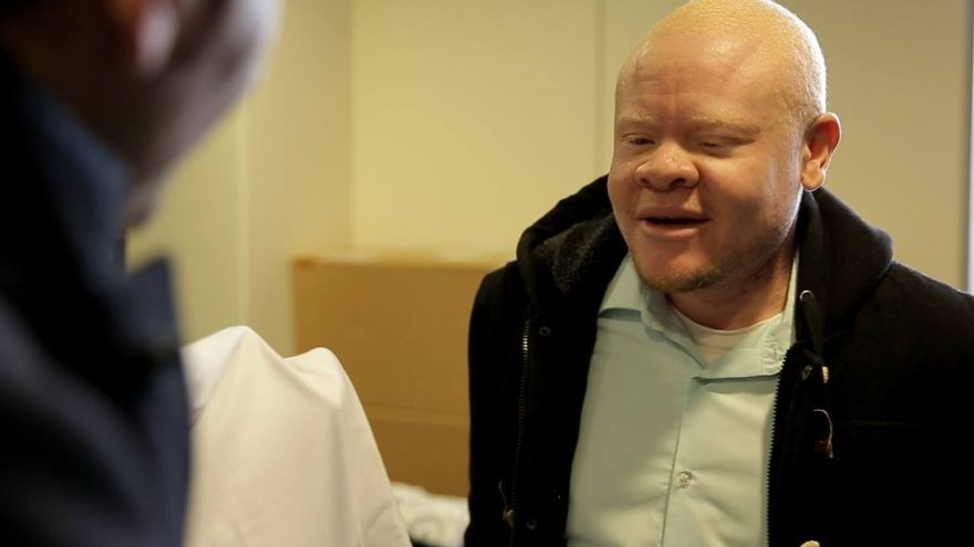 Moszi, la primera persona albina a la que concedieron el asilo en España (y en toda Europa) por la discriminación que sufría en su país por ser albino/ Fotograma del documental Black Man White Skin